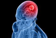 Хронический менингит