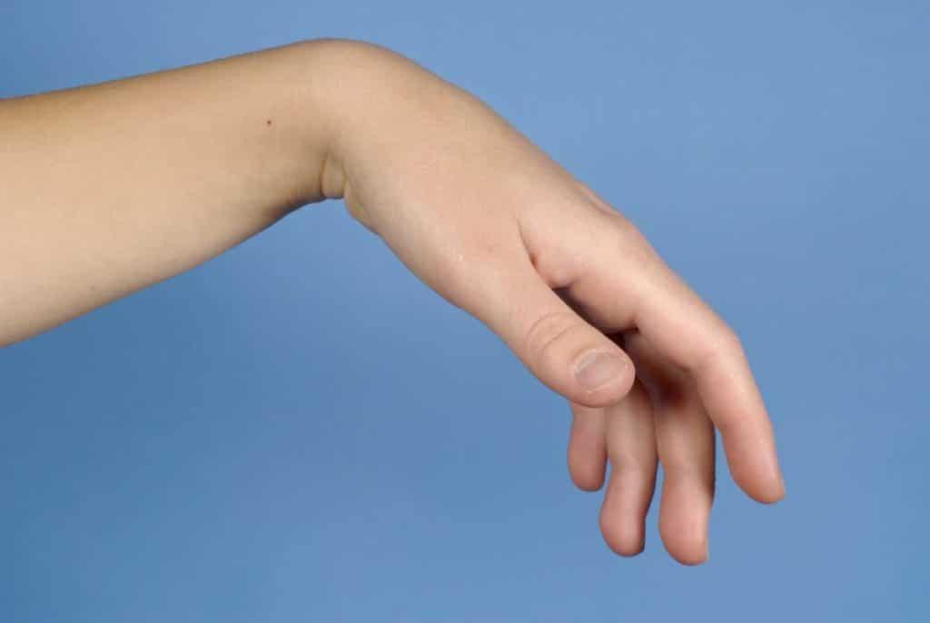 Поражение руки