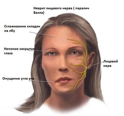 герпетическая невралгия лицевого нерва