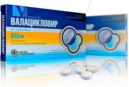 Медикаментозное лечение герпеса