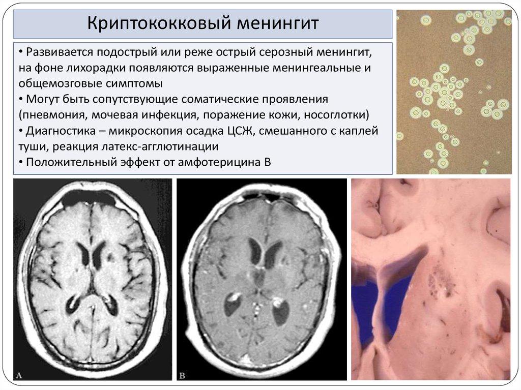 Причины возникновения криптококкового менингита