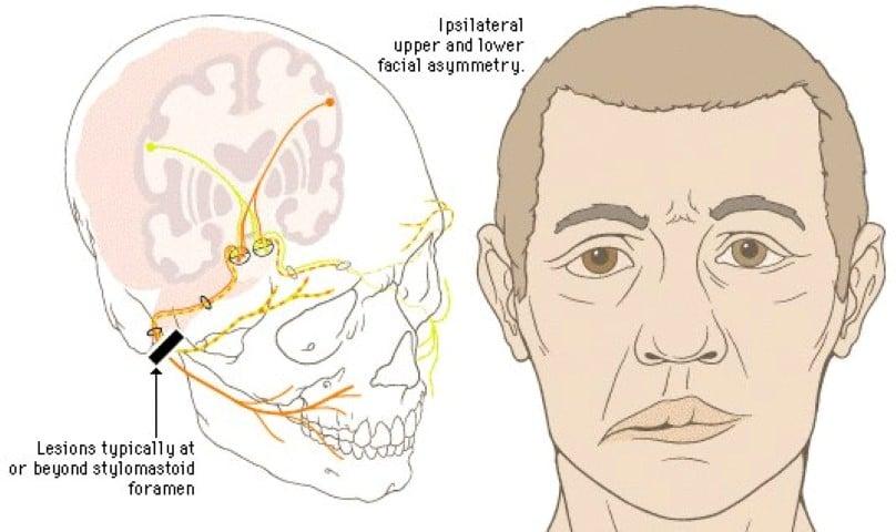 Асимметрия губ: причины возникновения и способы коррекции