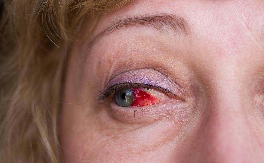Кровоизлияния при инсульте глаза.