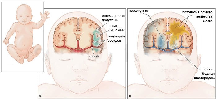 Ишемический инсульт у детей