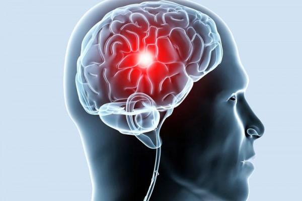 Лакунарный инсульт (ифаркт) головного мозга