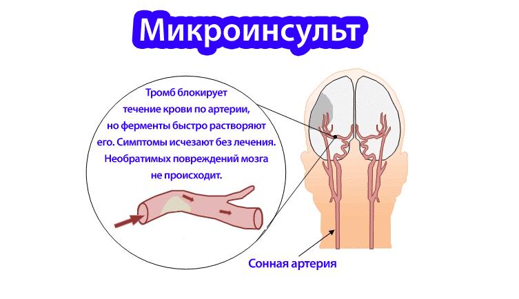 Микроинсульт схема