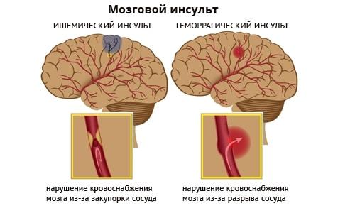 Отличие ишемического и геморрагического инсультов.
