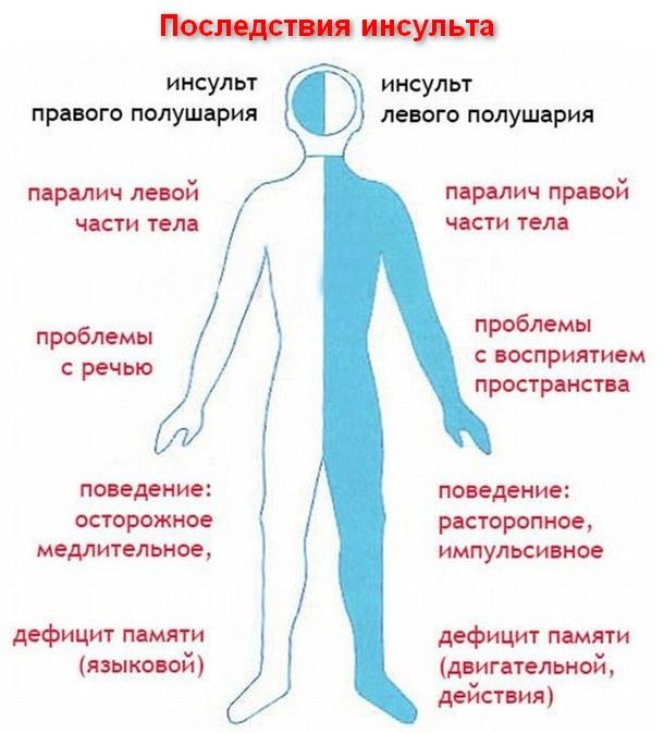 Наглядная схема последствий инсульта