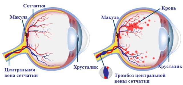 Тромбоз центральной вены сетчатки