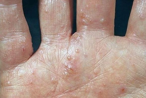 Пузырьки экземы на руках