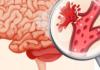 Геморрагический инсульт - что это такое?