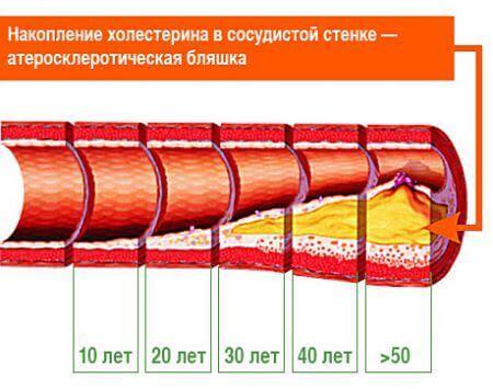Атеросклероз - развитие с возрастом