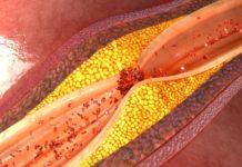 Атеросклероз, чем опасен?