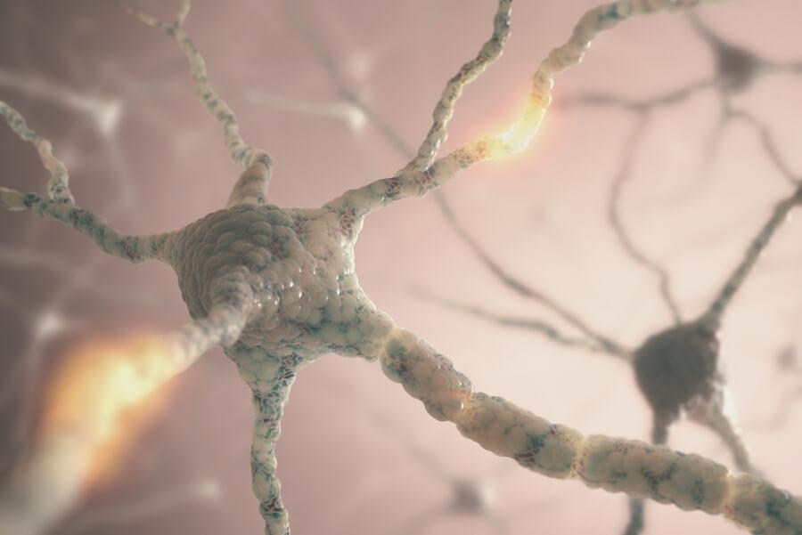 Рассеянный склероз: что это такое