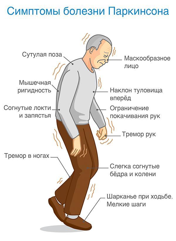 Как выглядит и проявляется болезнь Паркинсона