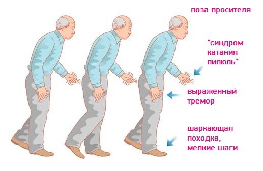 Болезнь Паркинсона - как проявляется