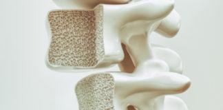 Остеопороз позвоночника - что это и как лечить?