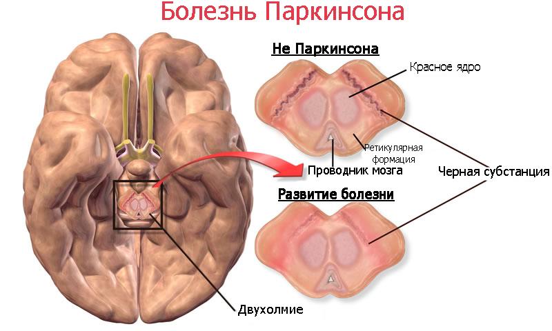 Мозг при болезни Паркинсона