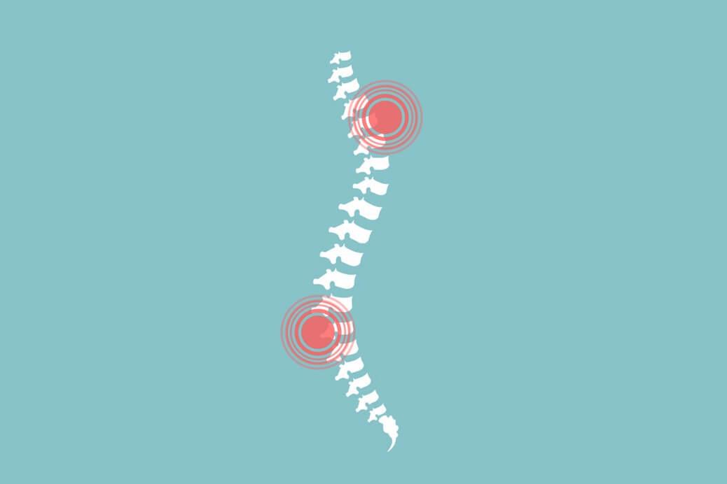 Боль в спине: какие причины?