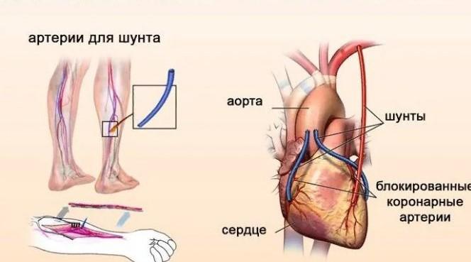Аортокоронарное шунтирование: как проходит операция