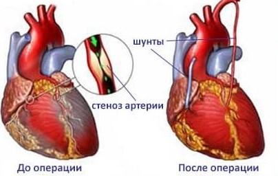 Аортокоронарное шунтирование- кому показана операция
