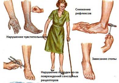 Полинейропатия: симптомы и проявления