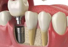 Протезирование и имплантация зубов в Харькове