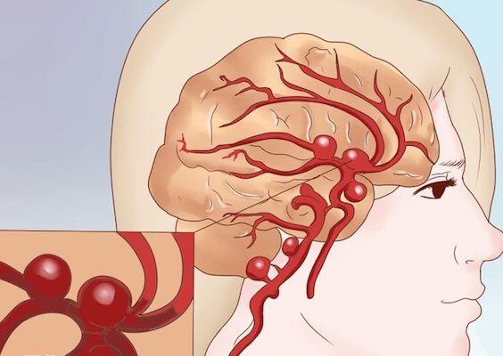 Субарахноидальное кровоизлияние: как определить и лечить, первая помощь