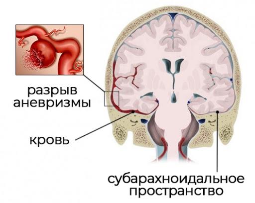 Разрыв аневризмы при субарахноидальном кровоизлиянии