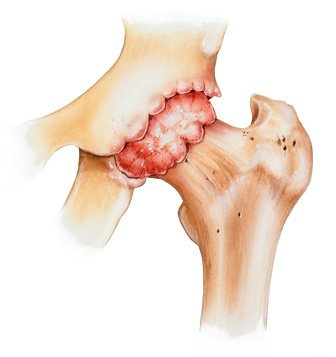 остеоартроз тазобедненного сустава