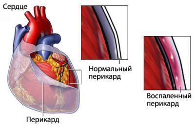 Перикардит- причины заболевания