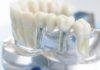 протезы на имплантах