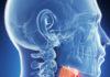рак горла - симптомы и лечение